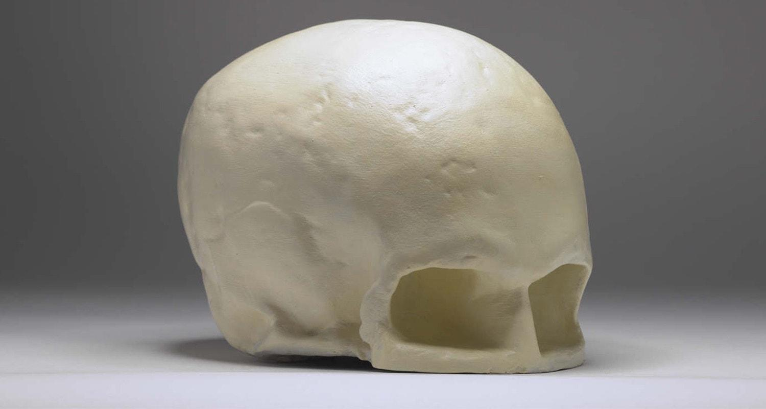 Robert Burns Skull, Writers' Museum